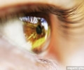 (THVL) Bệnh thoái hóa điểm vàng ở mắt